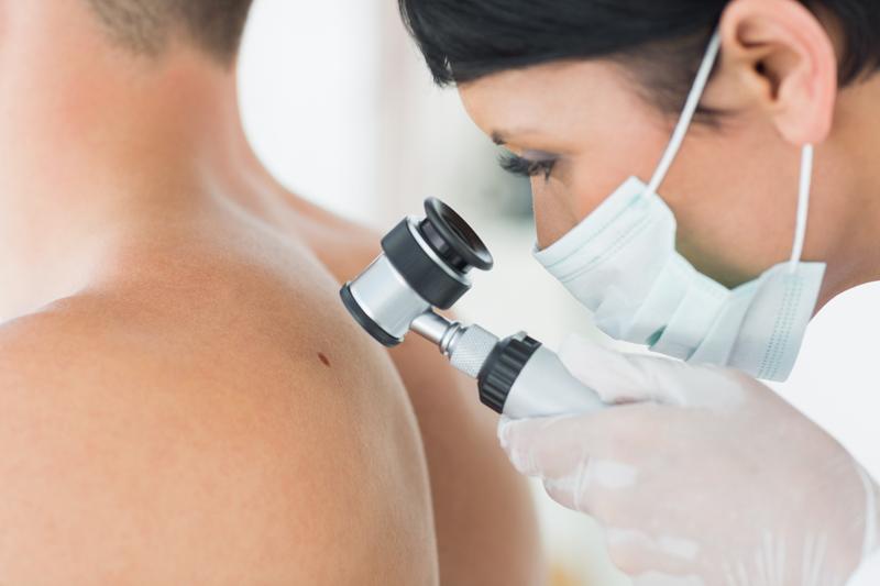 Pierderea in greutate reduce riscul de cancer de piele