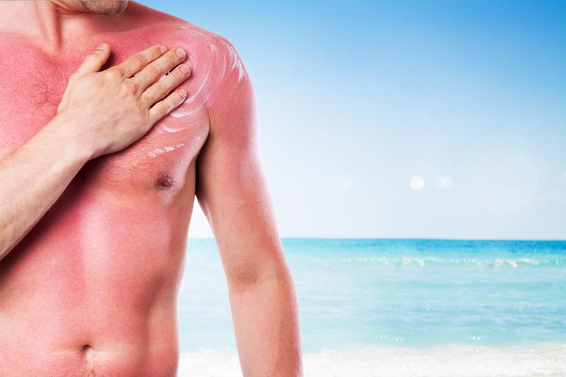 Arsurile solare si mancarimea pielii: cum sa va tratati