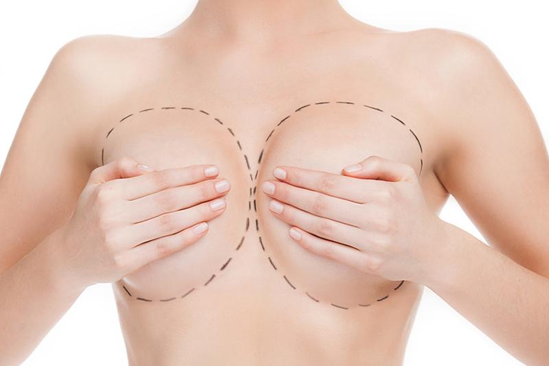 Care este marimea potrivita pentru un implant mamar?