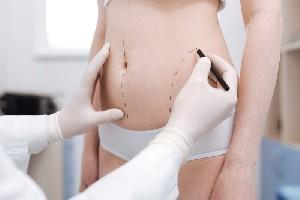 Care sunt beneficiile si riscurile liposuctiei?